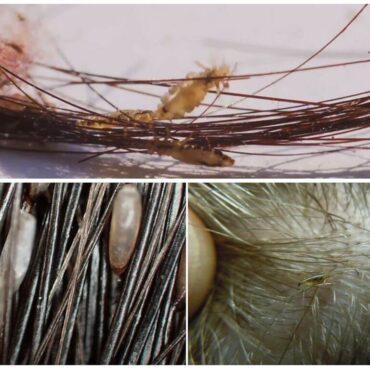 Вши в волосах: как обнаружить