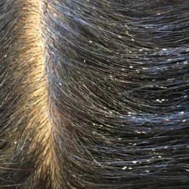 Признаки вшей в волосах, фото