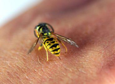 Укус осы: как лечить и обезболить?